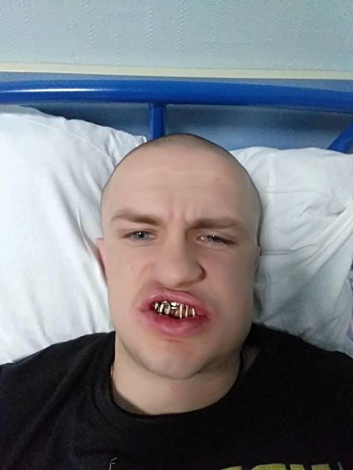 Сломали челюсть и выбили зубы: под Харьковом избили тренера по вольной борьбе
